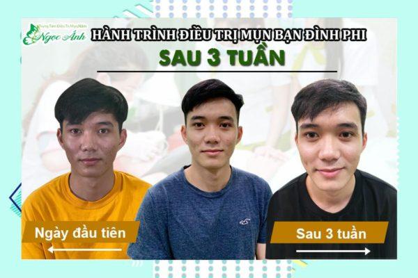 hanh-trinh-tri-mun-noi-tiet-mien-phi-cho-sinh-vien-spangocanh