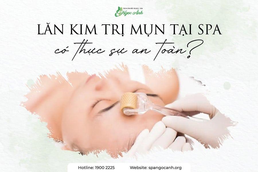 lan-kim-tri-mun-tai-ngoc-anh-spa