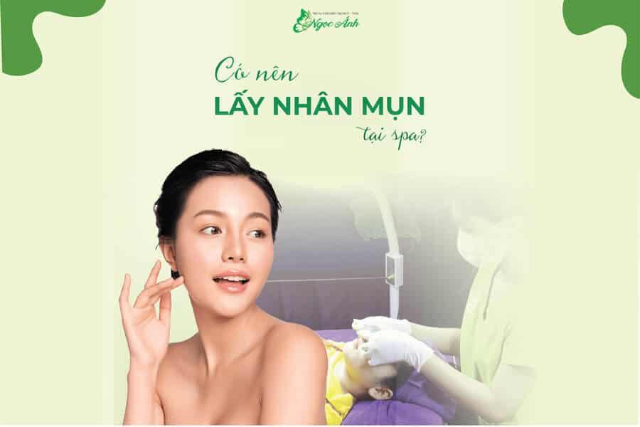 co-nen-lay-nhan-mun-tai-spa-spangocanh