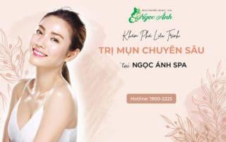 kham-pha-lieu-trinh-tri-mun-chuyen-sau-tai-spangocanh