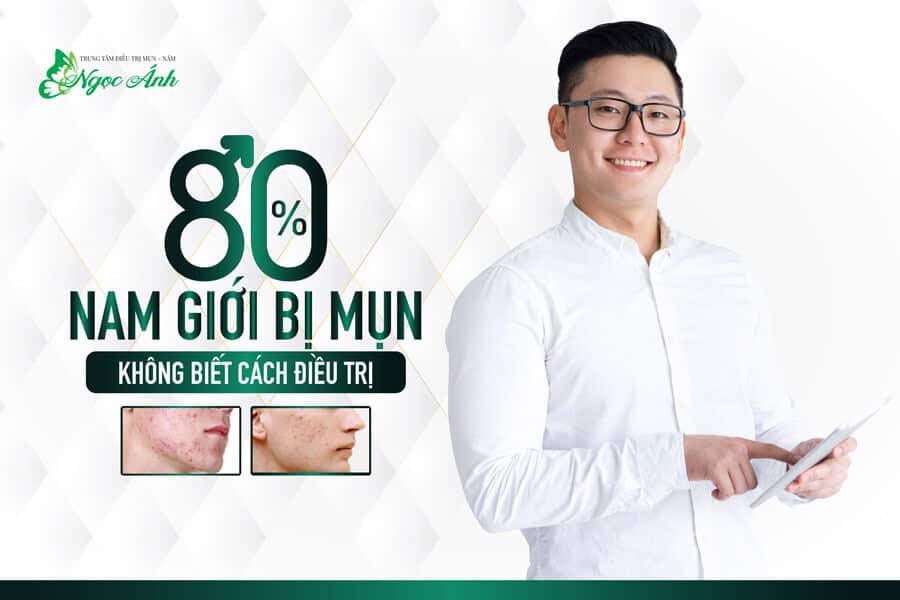 cach-tri-mun-cho-nam-tai-nha-spangocanh