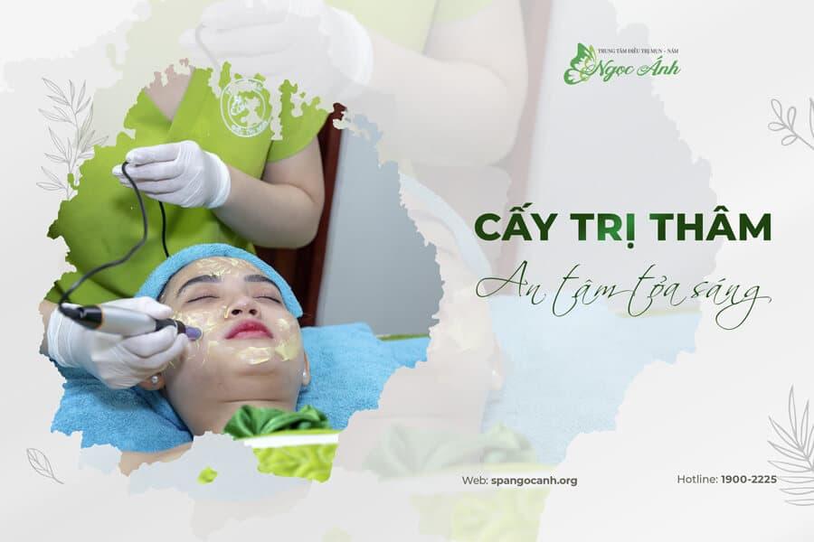 cay-tri-tham-an-tam-toa-sang-spangocanh