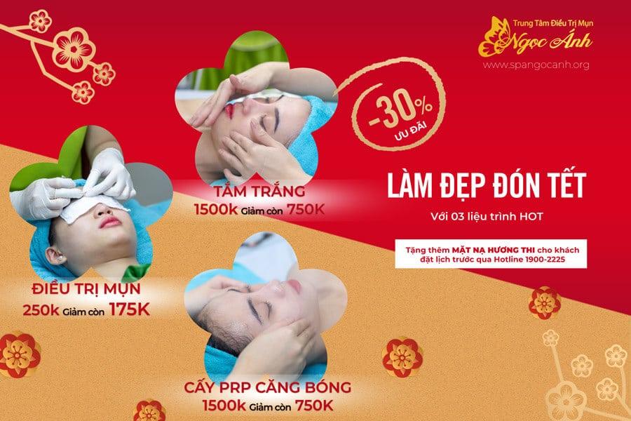 lam-dep-don-tet-voi-uu-dai-hap-dan-tu-spangocanh-900