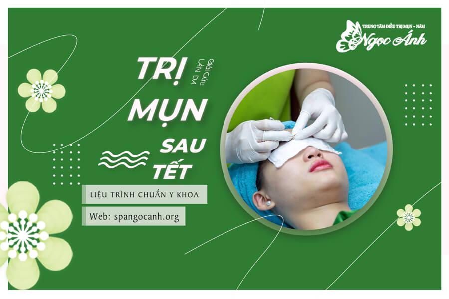 tri-mun-sau-tet-spangocanh-org