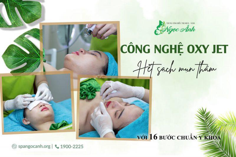 tri-mun-tham-voi-cong-nghe-oxy-jet-co-hieu-qua-spangocanh-900